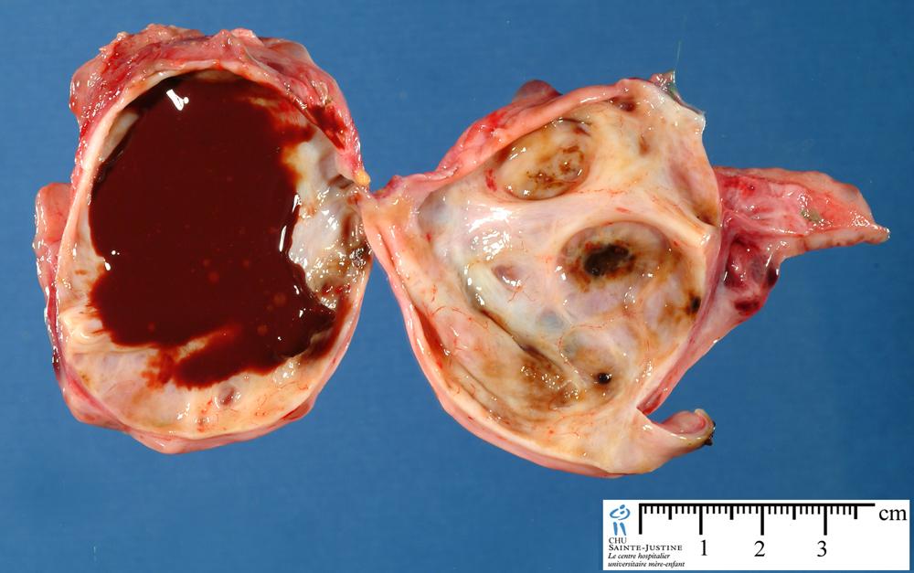 ovarian cysts - Humpath com - Human pathology