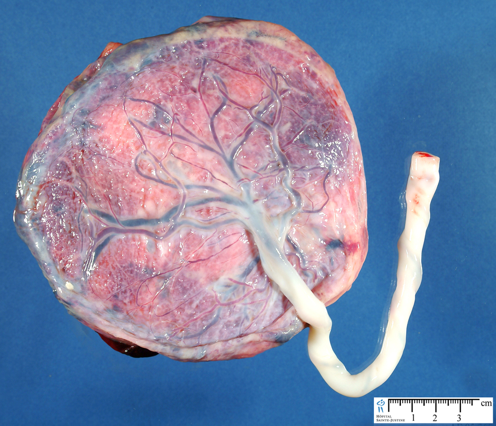 Image Search Female Reproductive System Diseases | Black ...