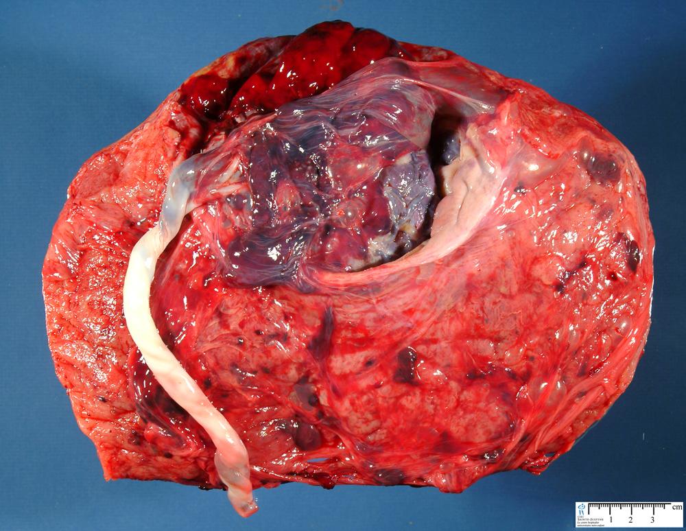 Jpg Placenta Percreta Circumvallata