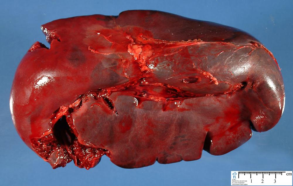 Spleen Humpath Human Pathology
