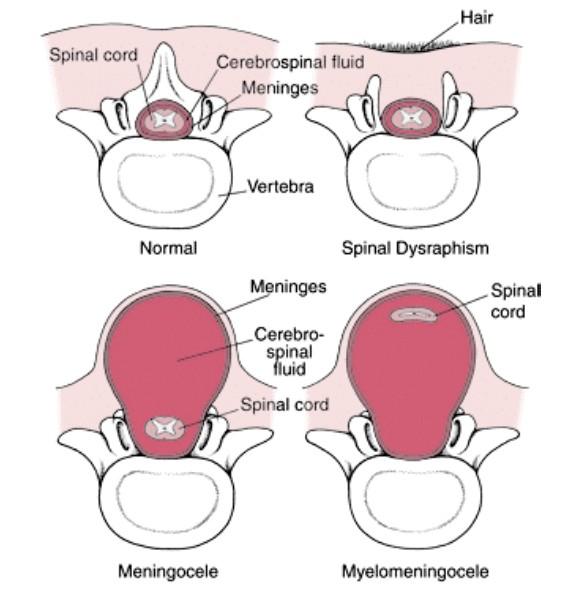 spina bifida - Humpath.com - Human pathology